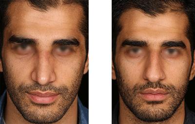 نمونه جراحی بینی دکتر حسین ابدالی 2