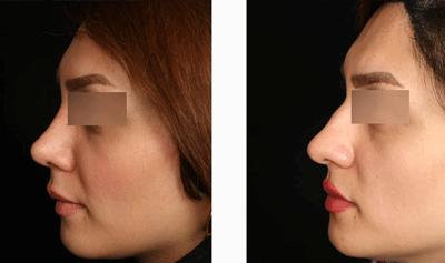 نمونه جراحی بینی دکتر حسین ابدالی 5