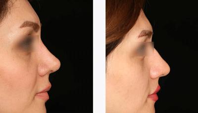 نمونه جراحی بینی دکتر حسین ابدالی 6