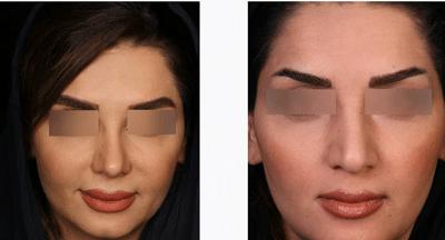 نمونه جراحی بینی دکتر حسین ابدالی 7