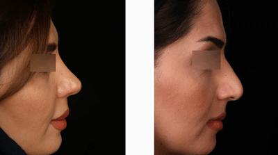 نمونه جراحی بینی دکتر حسین ابدالی 8