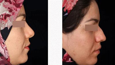 نمونه جراحی بینی دکتر حسین ابدالی 10