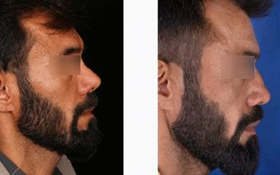 نمونه جراحی بینی دکتر حسین ابدالی 11