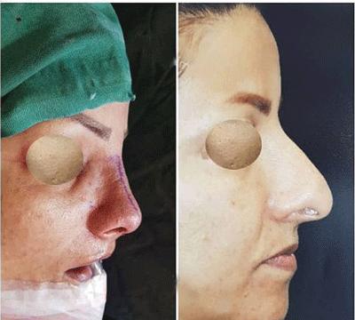 نمونه جراحی بینی دکتر قاسمی 2