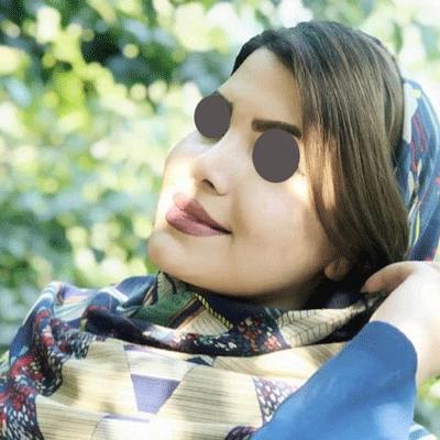 نمونه جراحی بینی دکتر نسیم کوشا 9