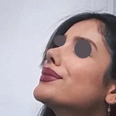 نمونه جراحی بینی دکتر نسیم کوشا 7
