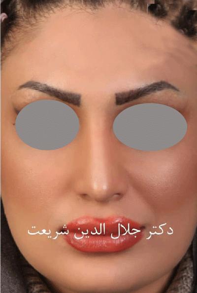 نمونه جراحی بینی دکتر جلال الدین شریعت 10