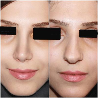 نمونه جراحی بینی دکتر فیروزه ای 6
