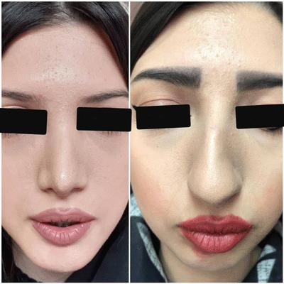 نمونه جراحی بینی دکتر فیروزه ای 5
