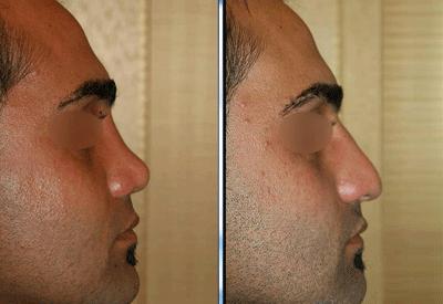 نمونه جراحی بینی دکتر نگین نجمی 11