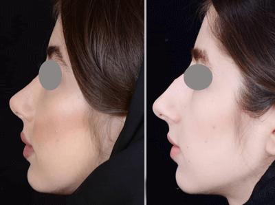 نمونه جراحی بینی دکتر ایمان محمدی 2