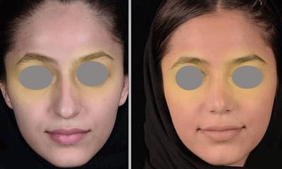 نمونه جراحی بینی دکتر ایمان محمدی 3