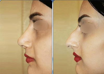 نمونه جراحی بینی دکتر نگین نجمی 10