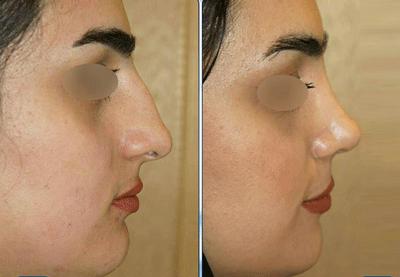 نمونه جراحی بینی دکتر نگین نجمی 9