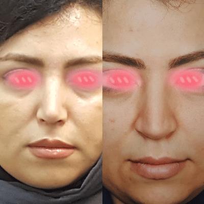 نمونه جراحی بینی دکتر حنیف اخوت 6