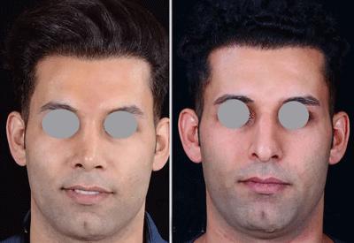 نمونه جراحی بینی دکتر ایمان محمدی 4