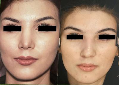 نمونه جراحی بینی دکتر توفیقی 1