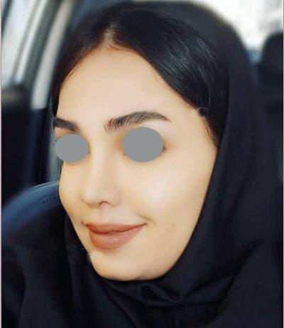 نمونه جراحی بینی دکتر نبی پور 1
