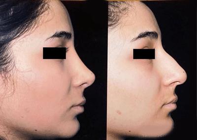 نمونه جراحی بینی دکتر توفیقی 3