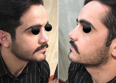 نمونه جراحی بینی دکتر علی اکبری 4