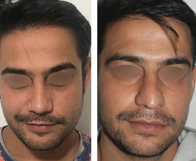 نمونه جراحی بینی دکتر ندافی 4
