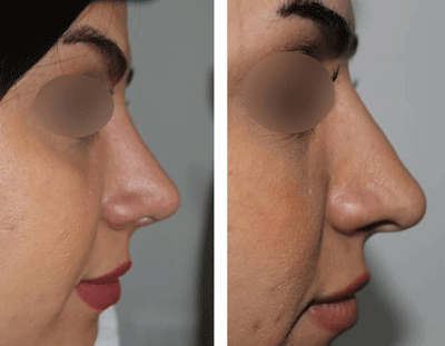 نمونه جراحی بینی دکتر ندافی 2