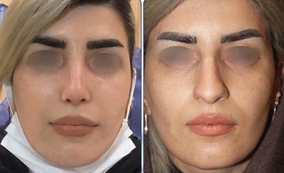 نمونه جراحی بینی دکتر نگین نجمی 7