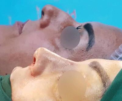 نمونه جراحی بینی دکتر عطار 4