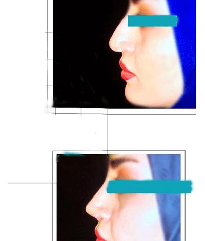 نمونه جراحی بینی دکتر محسنی مقدم 3