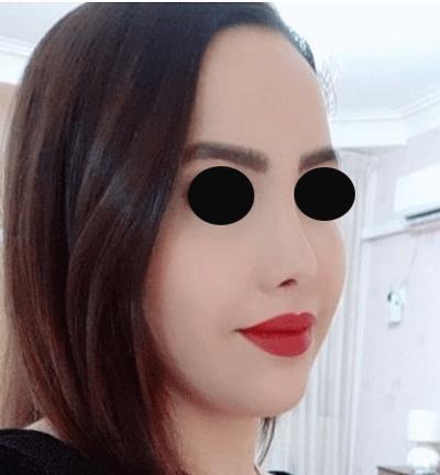 نمونه جراحی بینی دکتر فیروزه ای 2