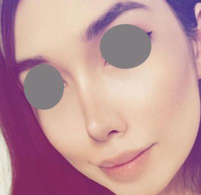 نمونه جراحی بینی دکتر ونون آصفی 1