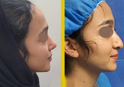 نمونه جراحی بینی دکتر طالع 1