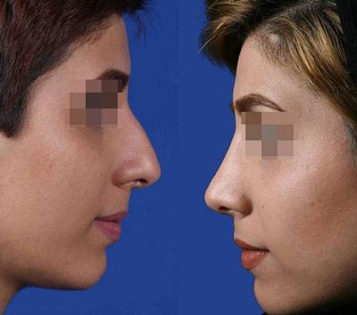 نمونه جراحی بینی دکتر حاتمی پور 1