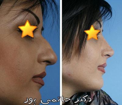 نمونه جراحی بینی دکتر حاتمی پور 10