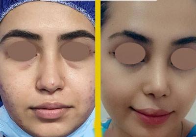 نمونه جراحی بینی دکتر طالع 2