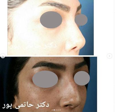نمونه جراحی بینی دکتر حاتمی پور 2