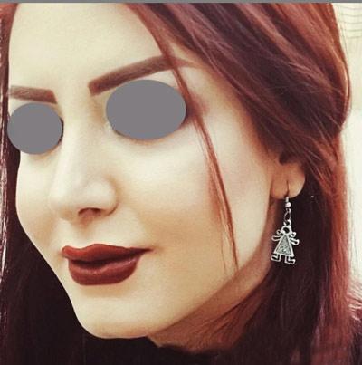 نمونه جراحی بینی دکتر ونون آصفی 3