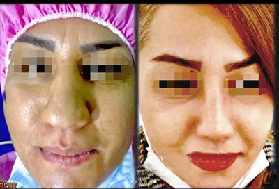 نمونه جراحی بینی دکتر گندمی 3