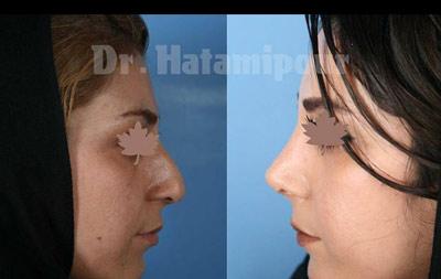 نمونه جراحی بینی دکتر حاتمی پور 3