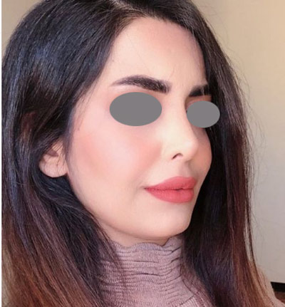 نمونه جراحی بینی دکتر ونون آصفی 4