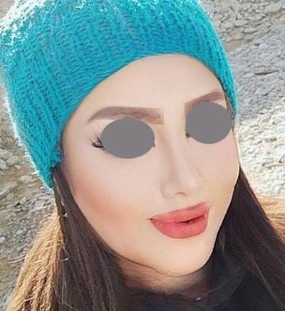 نمونه جراحی بینی دکتر ونون آصفی 5