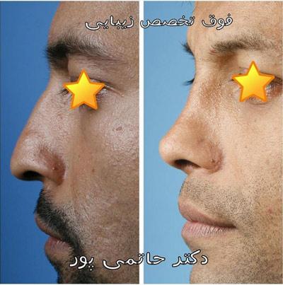 نمونه جراحی بینی دکتر حاتمی پور 5