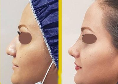 نمونه جراحی بینی دکتر طالع 6