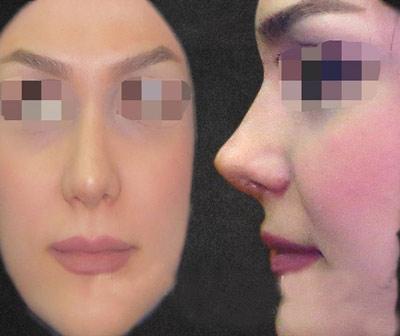 نمونه جراحی بینی دکتر گندمی 7