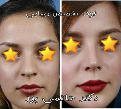 نمونه جراحی بینی دکتر حاتمی پور 6