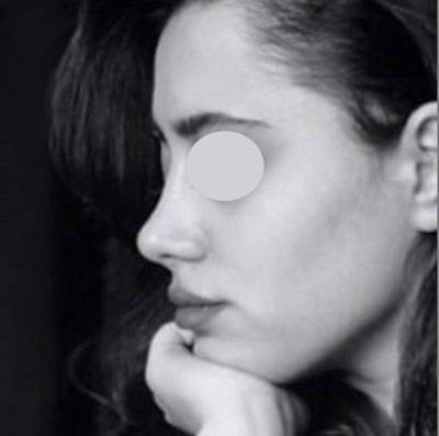 نمونه جراحی بینی دکتر نایب 7