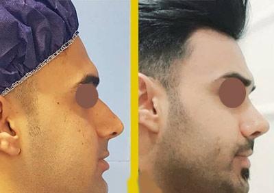 نمونه جراحی بینی دکتر طالع 7