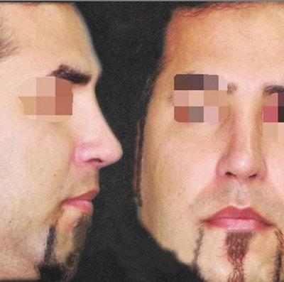نمونه جراحی بینی دکتر گندمی 8