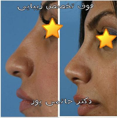 نمونه جراحی بینی دکتر حاتمی پور 7