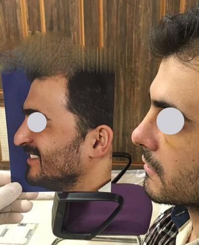 نمونه جراحی بینی دکتر نایب 8